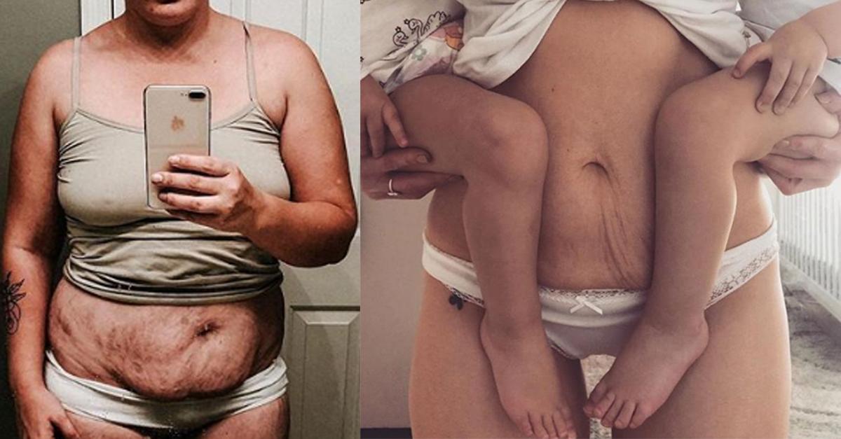 Diese Frauen zeigen ihren Körper nach der Schwangerschaft